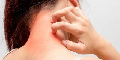 Alerjiye sebep olan durumlar ve çözümleri