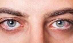 Göz Kuruluğu Nedir? Nasıl Oluşur?