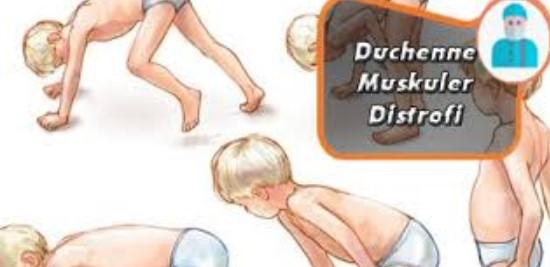 Duchenne Musküler Distrofi (Dmd) Bilgi Ve Tedavi Şekilleri Nelerdir?