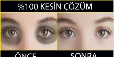 Göz Altı Morluğu Nedenleri ve Tedavisi Nasıl Yapılır?