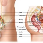 Prostat Kanseri Nasıl Engellenir?