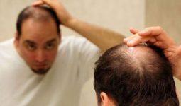 Erkeklerde Saç Dökülmesinin Nedeni?