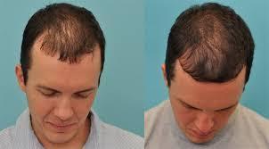 Saç dökülmesi Ve Önlenmesi İçin Tedbirler Nelerdir?
