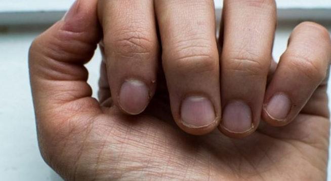 Tırnak Kırılmaları Nasıl Önlenir?