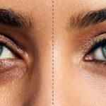 Göz Altı Morlukları Nedenleri Nelerdir?