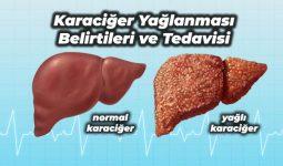 Karaciğer Yağlanması Nedenleri Ve Tedavisi