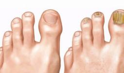 Ayak Mantarı İçin Doğal Tedavi Yöntemleri