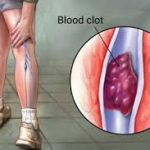 Önlenebilir Ölümcül Bir Hastalık Derin Ven Trombozu