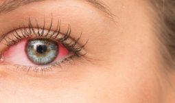 Göz Rahatsızlığı Olan Üveit Nedir?