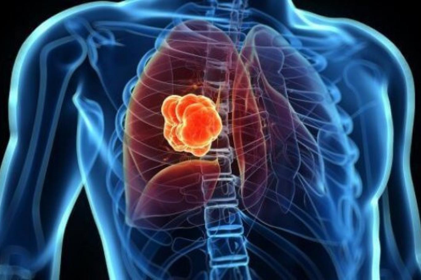 Akciğer Kanseri Sebepleri Ve Belirtileri