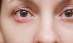 Arpacık rahatsızlığı nasıl oluşur ve nasıl geçer?