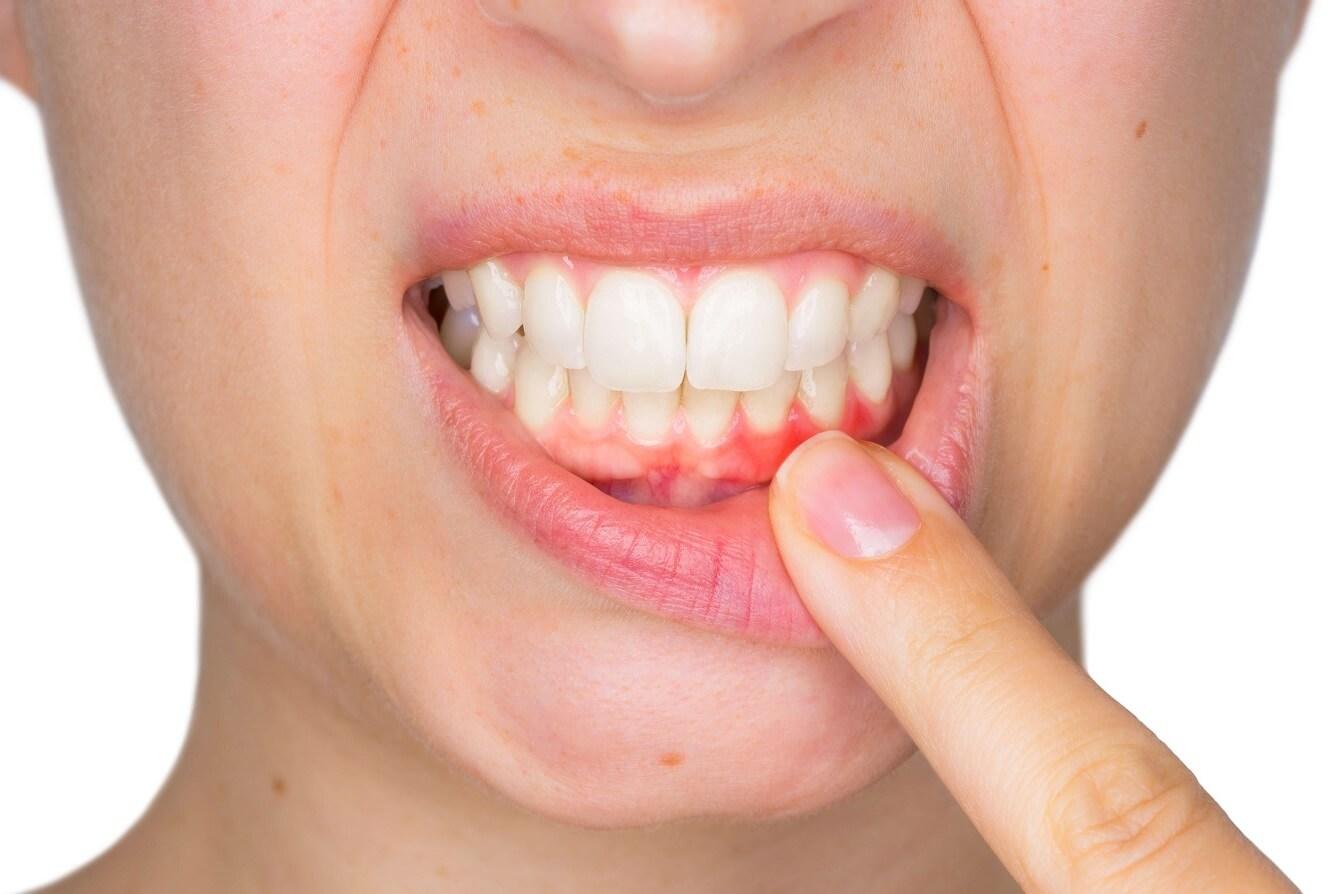 Diş Eti Hastalığı Belirtileri Ve Tedavisi