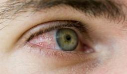 Göz Alerjisi Nedir? Neden Olur Yapılması Gerekenler Nelerdir?