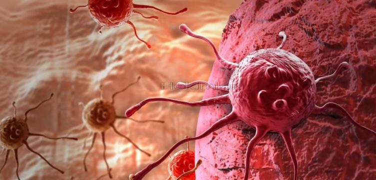 Kanser Nedir Korunma Yolları Nelerdir?