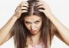 Saç Kepeklerinden Kurtulmanın Yolları Nelerdir?