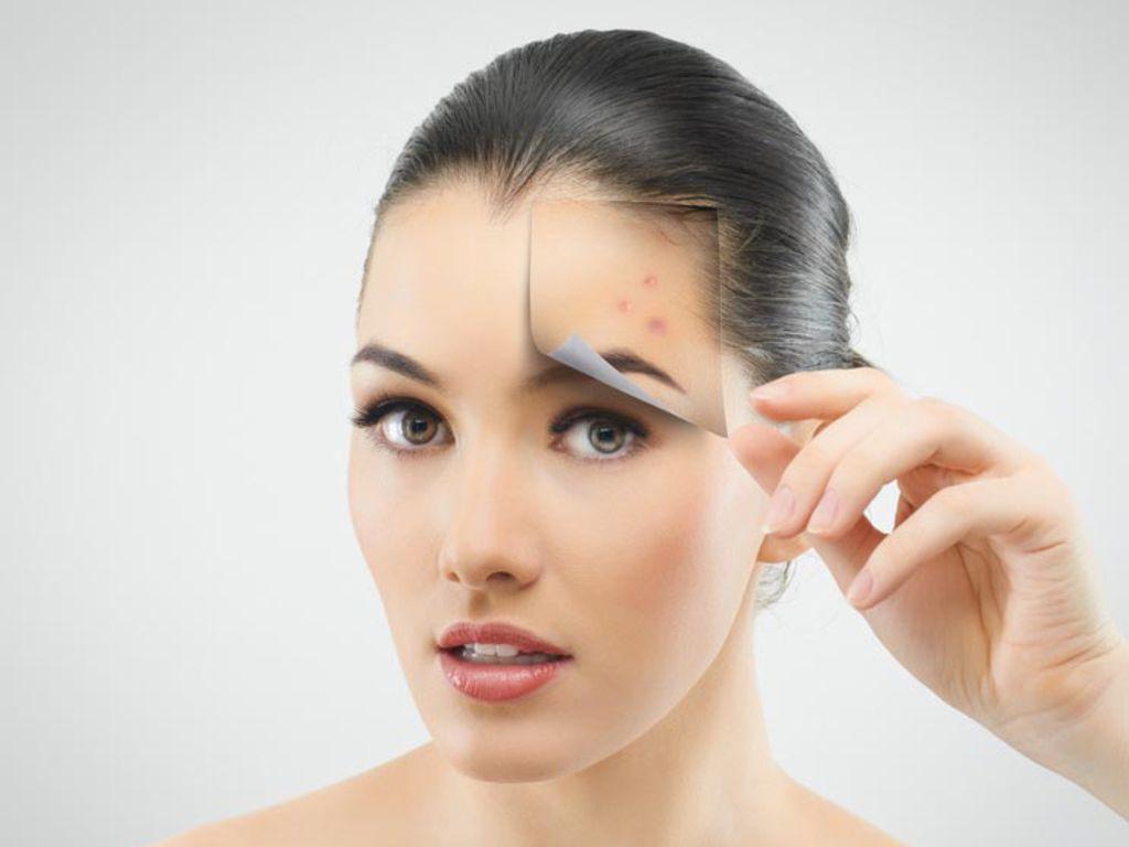 Kadınlarda Sivilce Neden Çıkar ve Sivilce Tedavileri?