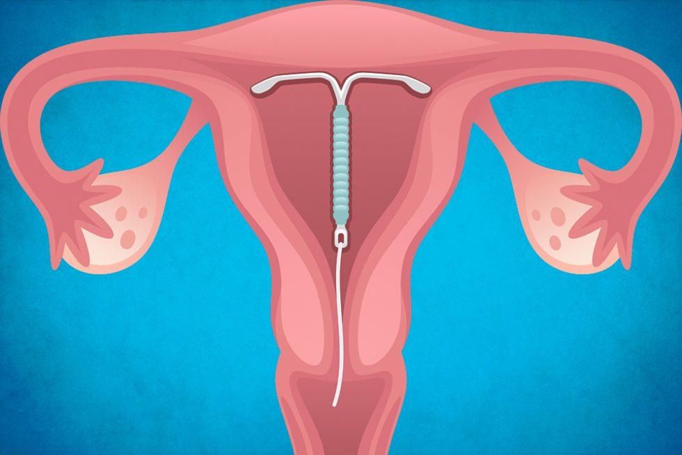 Doğum Kontrol Yöntemi Spiral
