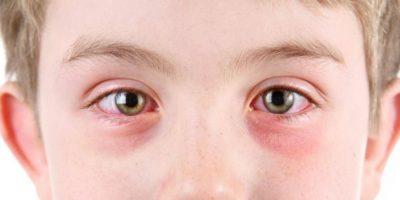 Sarı Nokta Hastalığına Faydalı Olan Besinler