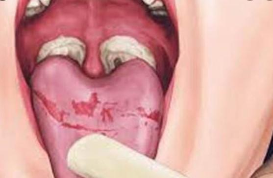 Difteri belirtileri nelerdir?